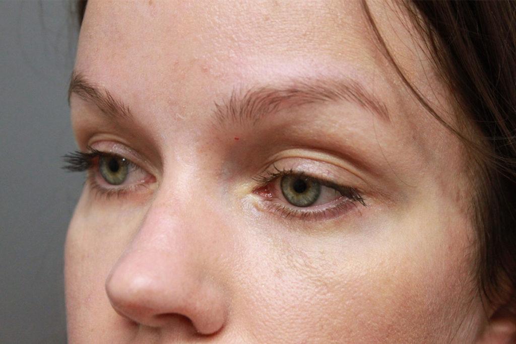 Блефаропластика нижних век — самый эффективный способ избавиться от мешков под глазами