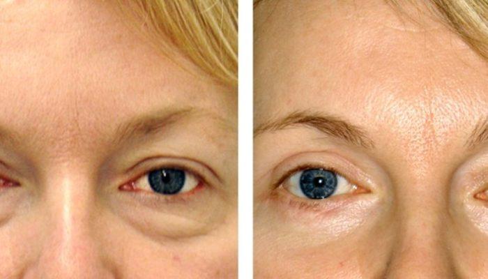 Морщинки под глазами после биоревитализации