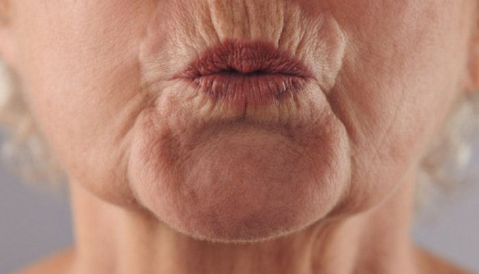Морщины вокруг рта: как убрать и избавиться от мимических морщин вокруг рта
