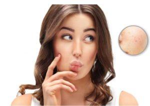 Пировиноградный пилинг лица: цены, фото до и после, отзывы