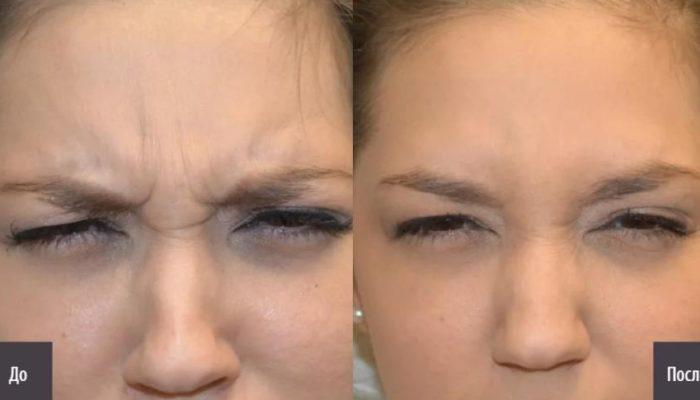 Ботокс между бровями до и после фото